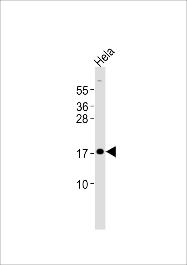 Anti-p18 INK4c Antibody at 1:1000 dilution + HeLa whole cell lysates Lysates/proteins at 20 ug per lane. Secondary Goat Anti-Rabbit IgG, (H+L),Peroxidase conjugated at 1/10000 dilution Predicted band size : 18 kDa Blocking/Dilution buffer: 5% NFDM/TBST.