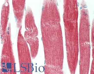 Human Skeletal Muscle: Formalin-Fixed, Paraffin-Embedded (FFPE)