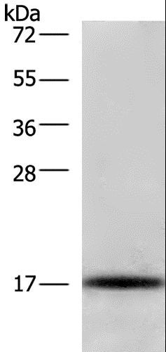 Western blot analysis of Raji cell, using CDKN2C Polyclonal Antibody at dilution of 1:325.