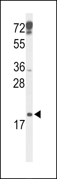 Western blot of p19 Antibody in mouse testis tissue lysates (35 ug/lane). p19 (arrow) was detected using the purified antibody.
