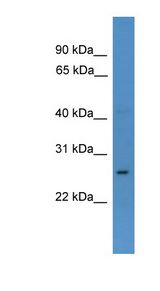 CDX1 antibody Western blot of OVCAR-3 cell lysate. This image was taken for the unconjugated form of this product. Other forms have not been tested.