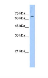 CDY2A / CDY Antibody - HepG2 cell lysate. Antibody concentration: 2.5 ug/ml. Gel concentration: 12%.  This image was taken for the unconjugated form of this product. Other forms have not been tested.