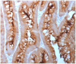 CEACAM1,5 Antibody - Formalin-fixed, paraffin-embedded Human Melanoma stained with CEA Rabbit Recombinant Monoclonal Antibody (C66/1983R).