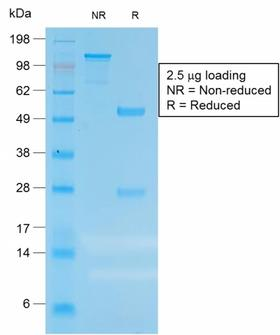 CEACAM1,5 Antibody - SDS-PAGE Analysis of Purified CEA Rabbit Recombinant Monoclonal Antibody (C66/1983R). Confirmation of Purity and Integrity of Antibody.