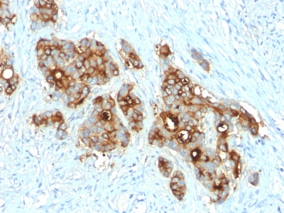 CEACAM1,5 Antibody - Formalin-fixed, paraffin-embedded human Colon Carcinoma stained with CEA Rabbit Recombinant Monoclonal Antibody (C66/2055R).