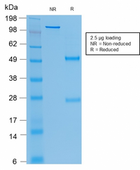 CEACAM1,5 Antibody - SDS-PAGE Analysis Purified CEA Mouse Recombinant Monoclonal Antibody (rC66/1009). Confirmation of Purity and Integrity of Antibody.