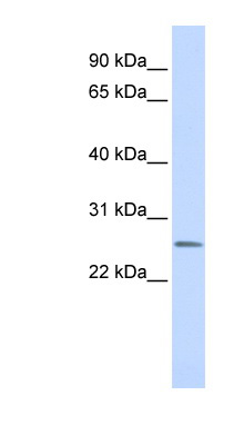CEACAM4 antibody LS-C102162 Western blot of Fetal Lung lysate.  This image was taken for the unconjugated form of this product. Other forms have not been tested.
