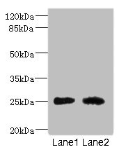 Western blot All Lanes: CEACAM4 antibody at 1.81ug/ml Lane 1: Rat heart tissue Lane 2: Mouse brain tissue Secondary Goat polyclonal to rabbit IgG at 1/10000 dilution Predicted band size: 26 kDa Observed band size: 26 kDa