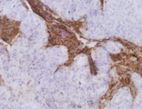 Immunohistochemistry staining of colorectal carcinoma (paraffin-embedded sections) with anti-human CD66e (CB30).  Primary antibody dilution: 10 µg/ml.