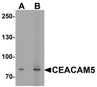 Western blot analysis of CEACAM5 in rat lung tissue lysate with CEACAM5 antibody at (A) 1 and (B) 2 ug/ml.