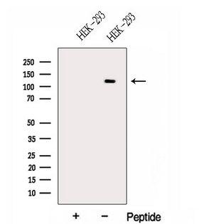 CEB1 / HERC5 Antibody - Western blot analysis of extracts of HEK293 cells using HERC5 antibody. The lane on the left was treated with blocking peptide.
