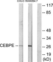 CEBPD + CEBPE Antibody - Western blot analysis of lysates from LOVO and RAW264.7 cells, using CEBPD/E Antibody. The lane on the right is blocked with the synthesized peptide.