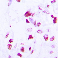 CEBPD + CEBPE Antibody - Immunohistochemical analysis of C/EBP delta/epsilon staining in human lung cancer formalin fixed paraffin embedded tissue section. The section was pre-treated using heat mediated antigen retrieval with sodium citrate buffer (pH 6.0). The section was then incubated with the antibody at room temperature and detected using an HRP conjugated compact polymer system. DAB was used as the chromogen. The section was then counterstained with hematoxylin and mounted with DPX.
