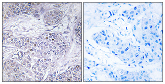 Immunohistochemistry analysis of paraffin-embedded human breast carcinoma tissue, using CEBPG Antibody. The picture on the right is blocked with the synthesized peptide.