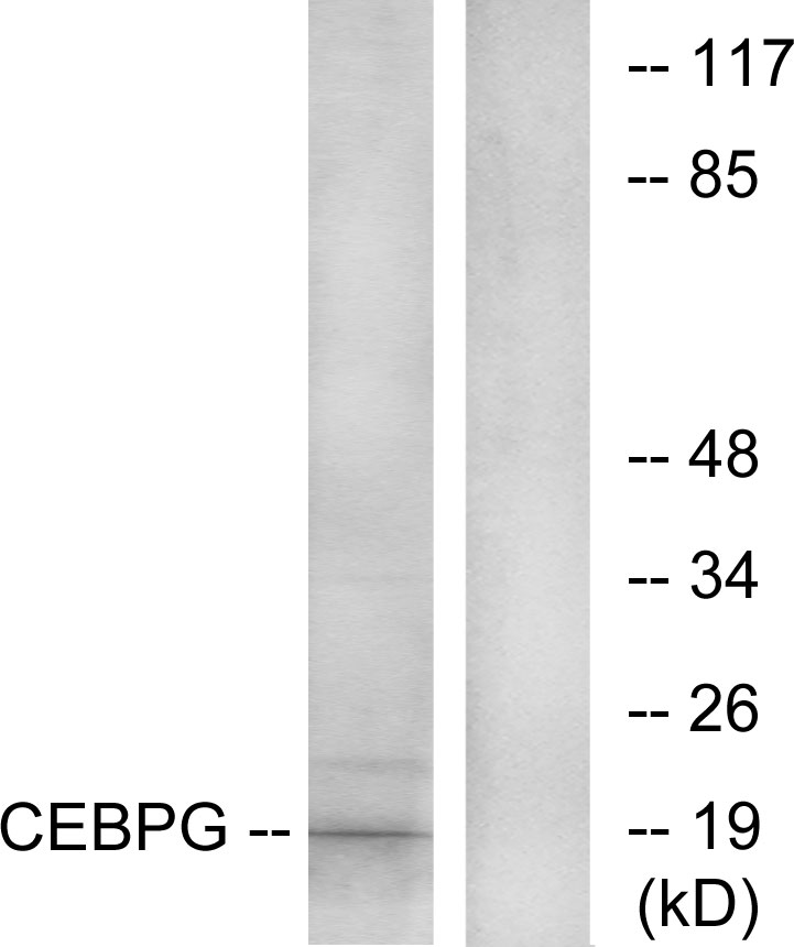 Western blot analysis of lysates from RAW264.7 cells, using CEBPG Antibody. The lane on the right is blocked with the synthesized peptide.