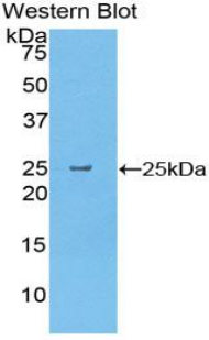 Western blot of recombinant CELA1 / Elastase.  This image was taken for the unconjugated form of this product. Other forms have not been tested.
