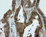IHC of paraffin-embedded Adenocarcinoma of colon tissue using anti-CUGBP1 mouse monoclonal antibody. (Dilution 1:50).