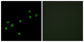 Immunofluorescence analysis of HepG2 cells, using Centromeric Protein A Antibody. The picture on the right is blocked with the synthesized peptide.