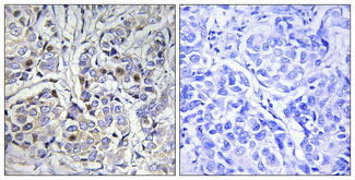 Immunohistochemistry analysis of paraffin-embedded human breast carcinoma tissue, using Centromeric Protein A Antibody. The picture on the right is blocked with the synthesized peptide.