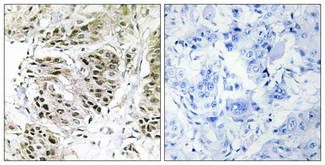 Immunohistochemistry analysis of paraffin-embedded human breast carcinoma, using CENPA Antibody. The picture on the right is blocked with the synthesized peptide.