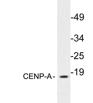 Western blot analysis of lysates from 293 cells, using CENP-A antibody.