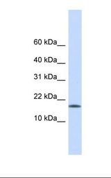 Hela cell lysate. Antibody concentration: 1.0 ug/ml. Gel concentration: 10-20%.  This image was taken for the unconjugated form of this product. Other forms have not been tested.