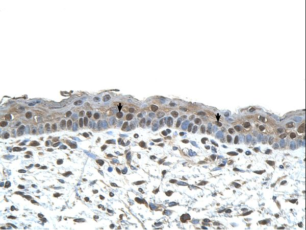 CENPA antibody LS-C80798 was used in IHC to stain formalin-fixed, paraffin-embedded human skin.  This image was taken for the unconjugated form of this product. Other forms have not been tested.