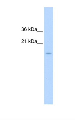 Jurkat cell lysate. Antibody concentration: 1.25 ug/ml. Gel concentration: 15%.  This image was taken for the unconjugated form of this product. Other forms have not been tested.