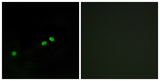 Immunofluorescence analysis of HeLa cells, using Centromeric Protein A (Phospho-Ser7) Antibody. The picture on the right is blocked with the phospho peptide.