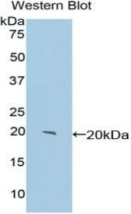 Western blot of recombinant CENPE.  This image was taken for the unconjugated form of this product. Other forms have not been tested.