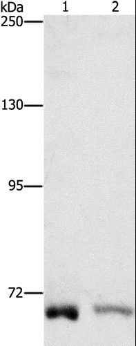 Western blot analysis of K562 and A431 cell, using CENPE Polyclonal Antibody at dilution of 1:1400.