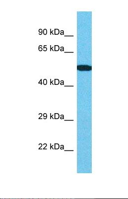Western blot of Human Thyroid Tumor. CENPI antibody dilution 1.0 ug/ml.  This image was taken for the unconjugated form of this product. Other forms have not been tested.
