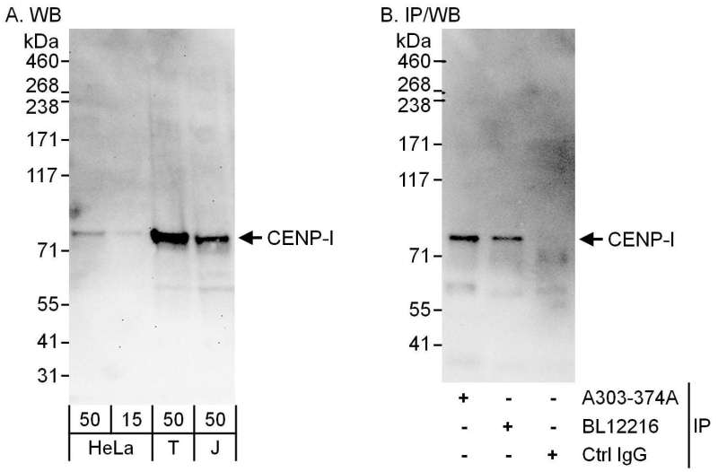 Detection of Human CENP-I by Western Blot and Immunoprecipitation. Samples: Whole cell lysate from HeLa (15 and 50 ug for WB; 1 mg for IP, 20% of IP loaded), 293T (T; 50 ug) and Jurkat (J; 50 ug) cells. Antibodies: Affinity purified rabbit anti-CENP-I antibody used for WB at 0.1 ug/ml (A) and 0.4 ug/ml (B) and used for IP at 6 ug/mg lysate. CENP-I was also immunoprecipitated by rabbit anti-CENP-I antibody BL12216, which recognizes a downstream epitope. Detection: Chemiluminescence with exposure times of 30 seconds (A) and 10 seconds (B).