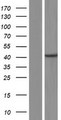 CENPN / CENP-N Protein - Western validation with an anti-DDK antibody * L: Control HEK293 lysate R: Over-expression lysate