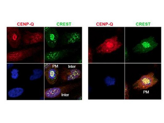 CENPQ Antibody - Anti-CENP-Q Antibody - Immunofluorescence Microscopy. Immunofluorescence microscopy using protein A purified anti-CENP-Q antibody shows detection of endogenous CENP-Q in HeLa whole cell lysate. Primary antibody was used at 1:100 followed by secondary antibody diluted 1:150. Red punctate anti-CENP-Q signal colocalizes in overlay images with green punctate anti-CREST signals at the kinetochores (attached points of sister chromatids). Visible are colocalized CENP-Q and CREST signal at various stages of the cell cycle as indicated from interphase to the end of mitosis. Nuclei are counter stained with bisbenzimide. Personal Communication, Kyung S. Lee, CCR-NCI, Bethesda, MD.