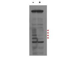 CENPU / MLF1IP Antibody - Western blot using the affinity purified anti-MLF1IP antibody shows detection of endogenous MLF1IP protein (a tier of four modified protein bands indicated by the arrowheads) in lysates of Hela cells treated with control luciferase shRNA (lane 1), and detection of MLF1IP in Hela cells transfected with MLF1IP (lane 3). Lane 2: Hela cells treated with MLF1IP shRNA. The identity of the lower molecular weight bands is unknown. Primary antibody was used at 1:1,000.