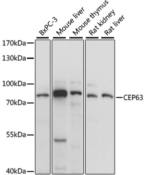 CEP63 Antibody - Western blot analysis of extracts of various cell lines, using CEP63 antibody at 1:1000 dilution. The secondary antibody used was an HRP Goat Anti-Rabbit IgG (H+L) at 1:10000 dilution. Lysates were loaded 25ug per lane and 3% nonfat dry milk in TBST was used for blocking. An ECL Kit was used for detection and the exposure time was 1s.