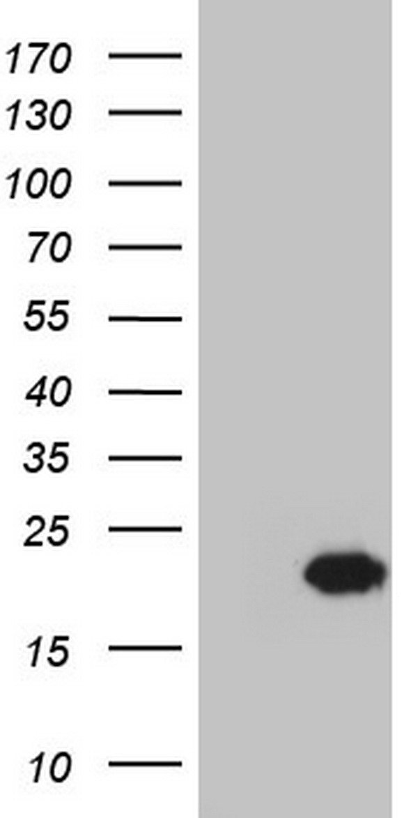 HEK293T cells were transfected with the pCMV6-ENTRY control (Left lane) or pCMV6-ENTRY CETN1 (Right lane) cDNA for 48 hrs and lysed. Equivalent amounts of cell lysates (5 ug per lane) were separated by SDS-PAGE and immunoblotted with anti-CETN1.