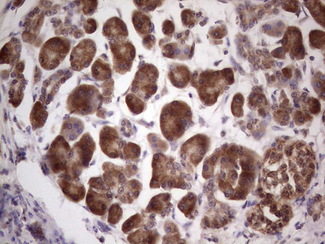 IHC of paraffin-embedded Carcinoma of Human pancreas tissue using anti-CETN1 mouse monoclonal antibody. (Heat-induced epitope retrieval by 1 mM EDTA in 10mM Tris, pH8.5, 120°C for 3min).