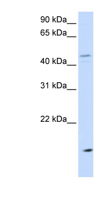 CETP antibody LS-C111324 Western blot of MCF7 cell lysate.  This image was taken for the unconjugated form of this product. Other forms have not been tested.