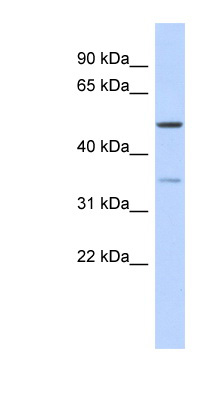 CETP antibody LS-C111325 Western blot of Fetal Thymus lysate.  This image was taken for the unconjugated form of this product. Other forms have not been tested.