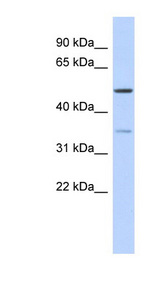 CETP antibody Western blot of Fetal Thymus lysate. This image was taken for the unconjugated form of this product. Other forms have not been tested.