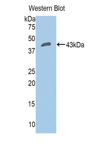 Western blot of recombinant CFB / Complement Factor B.  This image was taken for the unconjugated form of this product. Other forms have not been tested.