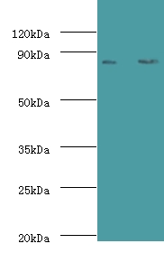 Western blot of Complement factor B antibody at 2 ug/ml lane 1: K562 whole cell lysate lane 2: HepG2 whole cell lysate. Secondary: Goat polyclonal to rabbit at 1:10000 dilution predicted band size: 86 KDa observed band size: 86 KDa.  This image was taken for the unconjugated form of this product. Other forms have not been tested.