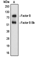 Western blot analysis of Factor B Bb expression in Raji Etoposide-treated (A) whole cell lysates.
