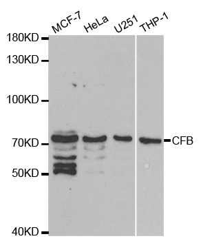 Western blot analysis of extracts of various cell lines, using CFB antibody at 1:1000 dilution. The secondary antibody used was an HRP Goat Anti-Rabbit IgG (H+L) at 1:10000 dilution. Lysates were loaded 25ug per lane and 3% nonfat dry milk in TBST was used for blocking.