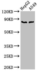 Positive Western Blot detected in HepG2 whole cell lysate, A549 whole cell lysate. All lanes: CFB antibody at 2.8 µg/ml Secondary Goat polyclonal to rabbit IgG at 1/50000 dilution. Predicted band size: 86 KDa. Observed band size: 86 KDa