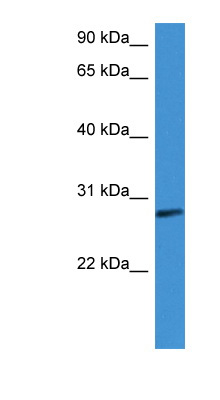 CFD / Adipsin antibody Western blot of Fetal lung lysate.  This image was taken for the unconjugated form of this product. Other forms have not been tested.