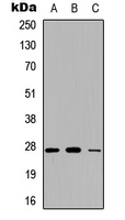 CFD / Factor D / Adipsin Antibody - Western blot analysis of Adipsin expression in A549 (A); NS-1 (B); PC12 (C) whole cell lysates.
