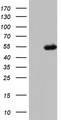 HEK293T cells were transfected with the pCMV6-ENTRY control (Left lane) or pCMV6-ENTRY CFH (Right lane) cDNA for 48 hrs and lysed. Equivalent amounts of cell lysates (5 ug per lane) were separated by SDS-PAGE and immunoblotted with anti-CFH.